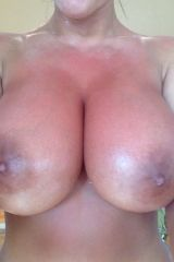 Stacey Poole needs aloe rubbing into her sunburnt ...