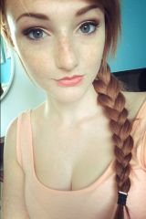 Some say this freckled redhead is a mix of Anna an...